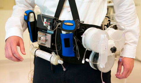 Working prototype of wearable artificial kidney developed by Victor Gura, MD, and his team (credit: Stephen Brashear/University of Washington)